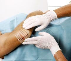 Omnistrip® / Омнистрип пластырь для сведения краев операционной раны